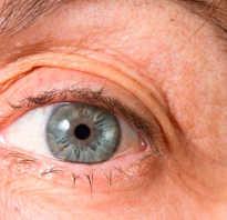 Какие осложнения могут быть после операции катаракты