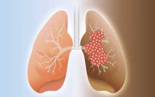Онкологическое заболевание легких