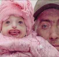 Синдром нагера фото до и после операции