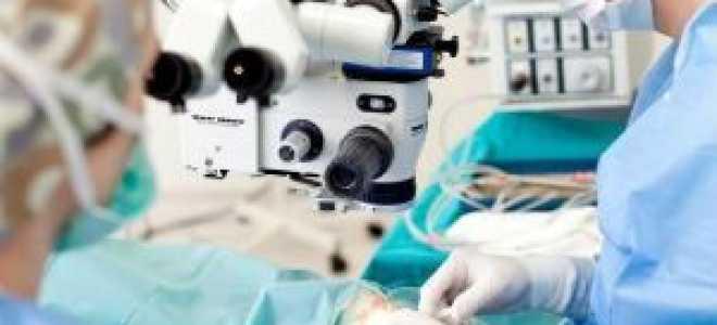 Противопоказания для операции катаракты