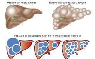 Как вылечить кисту печени без операции