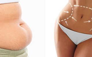 Операция жир на животе