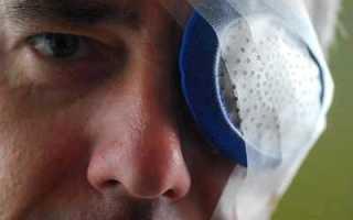 Осложнения после операции по поводу катаракты