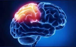 Диета при глиозе головного мозга