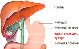 Растворить камни в желчном пузыре без операции