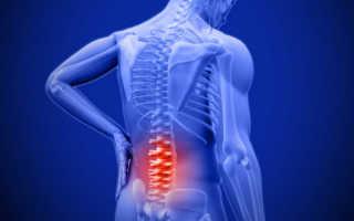 Комплекс упр при заболеваниях позвоночника и суставов